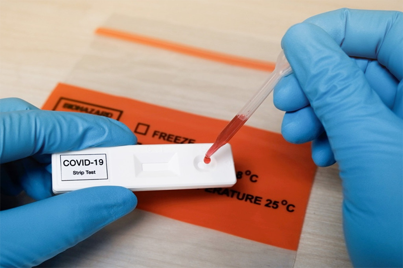 COVID Antibody Tests – Here Comes More Trickery and Fakery