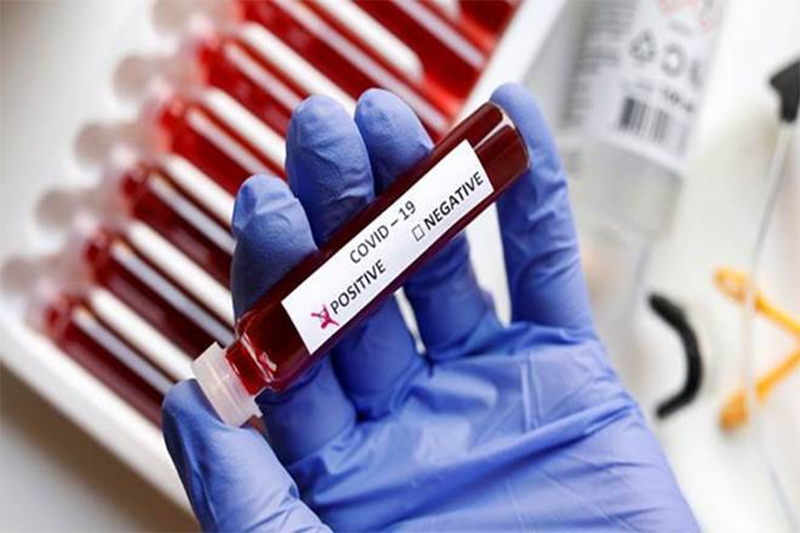 What You Probably Didn't Know About: RT-PCR Testing – BUT SHOULD!